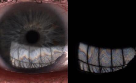 LipiView interferometer image showing good tear fluid